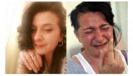 32 dişini kaybeden kadının ağrıları dinmeyince çene sinir uçları kesildi