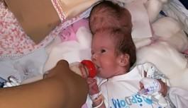 Siyam İkizleri Biberonla Beslenmeye Başlandı