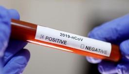 Alanya'da 3 aylık bebek virüse yakalandı
