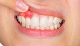 Dişleri fırçalarken oluşan kanamalara dikkat!